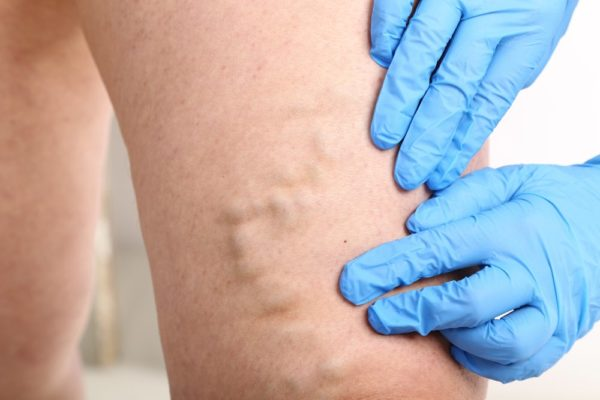 Risks of varicose veins