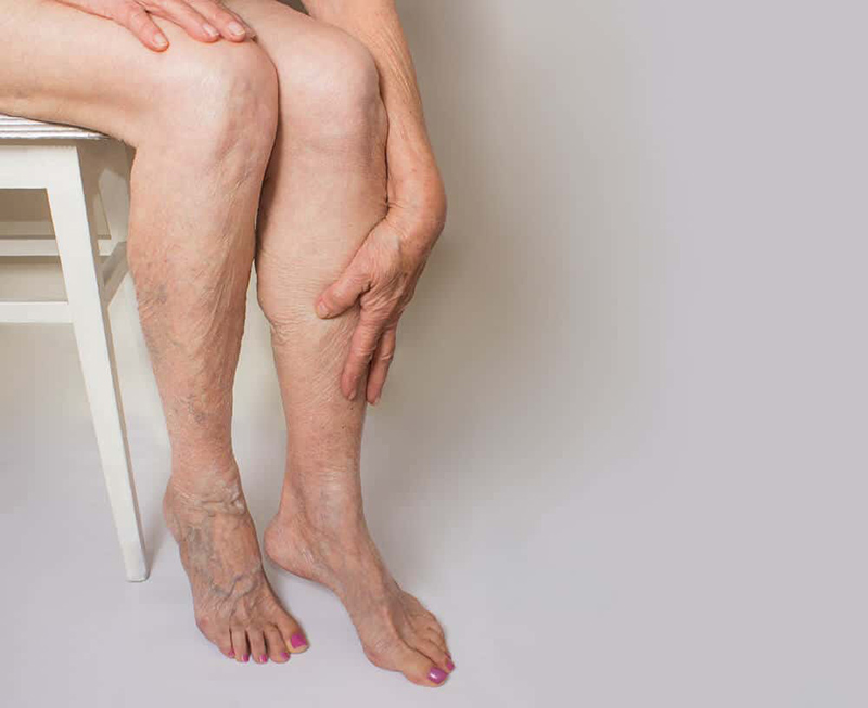 Varicose Veins on Leg_Sclerotherapy